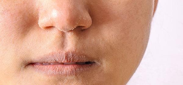 روش های درمان خشکی پوست در پاییز