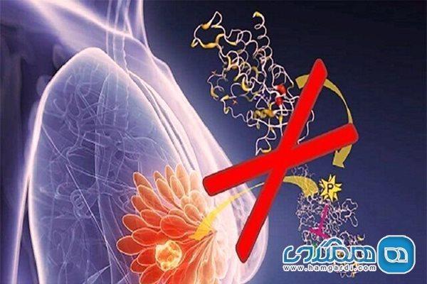 علت مهمی که زنان را به سرطان پستان نزدیک می نماید